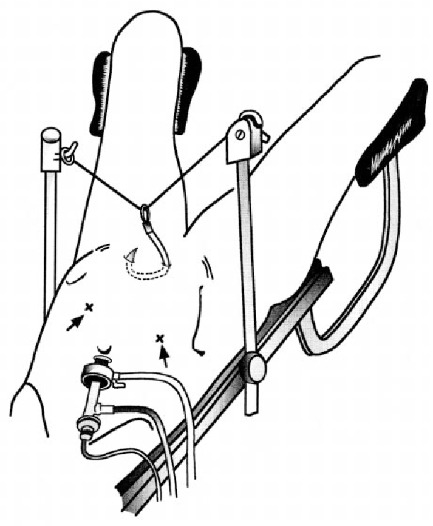Figure 2 From A New Technique Of Laparoscopic Obturator Hernia