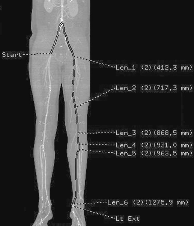 Functional lengths of the lower limb arterial tree measured by CT ...