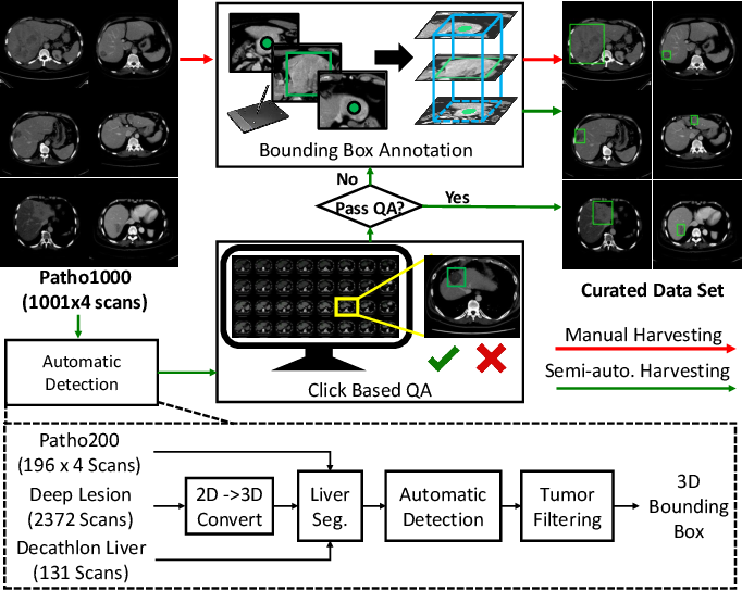 Figure 4 for Harvesting, Detecting, and Characterizing Liver Lesions from Large-scale Multi-phase CT Data via Deep Dynamic Texture Learning