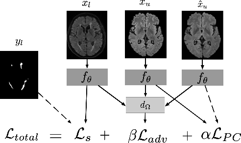 Figure 1 for Multi-Domain Adaptation in Brain MRI through Paired Consistency and Adversarial Learning