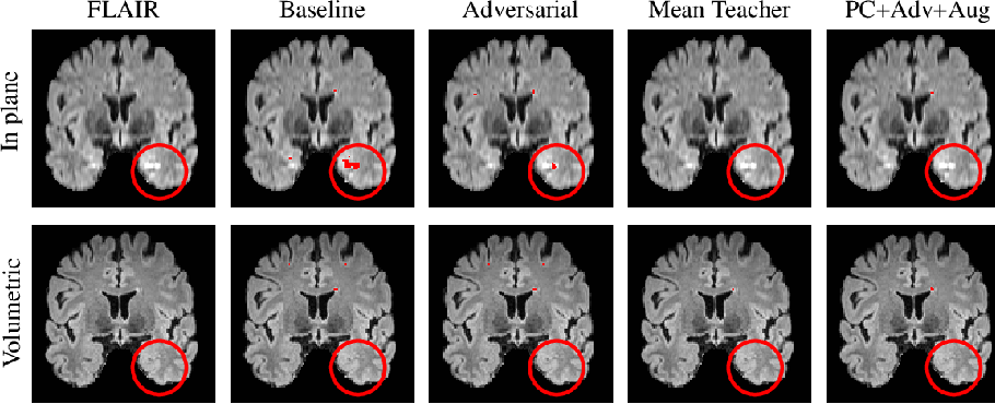 Figure 3 for Multi-Domain Adaptation in Brain MRI through Paired Consistency and Adversarial Learning