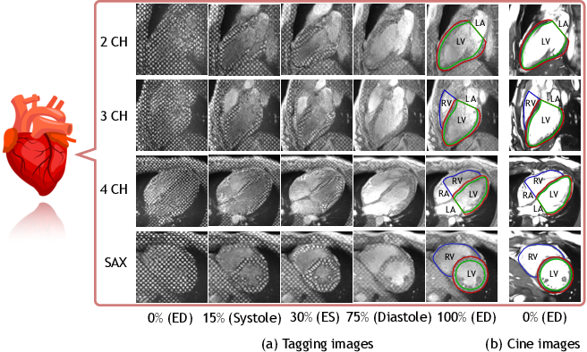 Figure 1 for DeepTag: An Unsupervised Deep Learning Method for Motion Tracking on Cardiac Tagging Magnetic Resonance Images