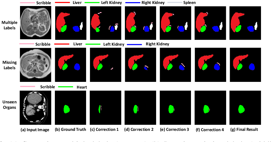 Figure 4 for Efficient and Generic Interactive Segmentation Framework to Correct Mispredictions during Clinical Evaluation of Medical Images