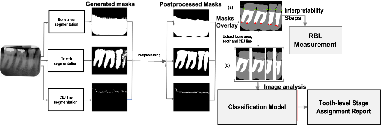 Figure 1 for An End-to-end Entangled Segmentation and Classification Convolutional Neural Network for Periodontitis Stage Grading from Periapical Radiographic Images
