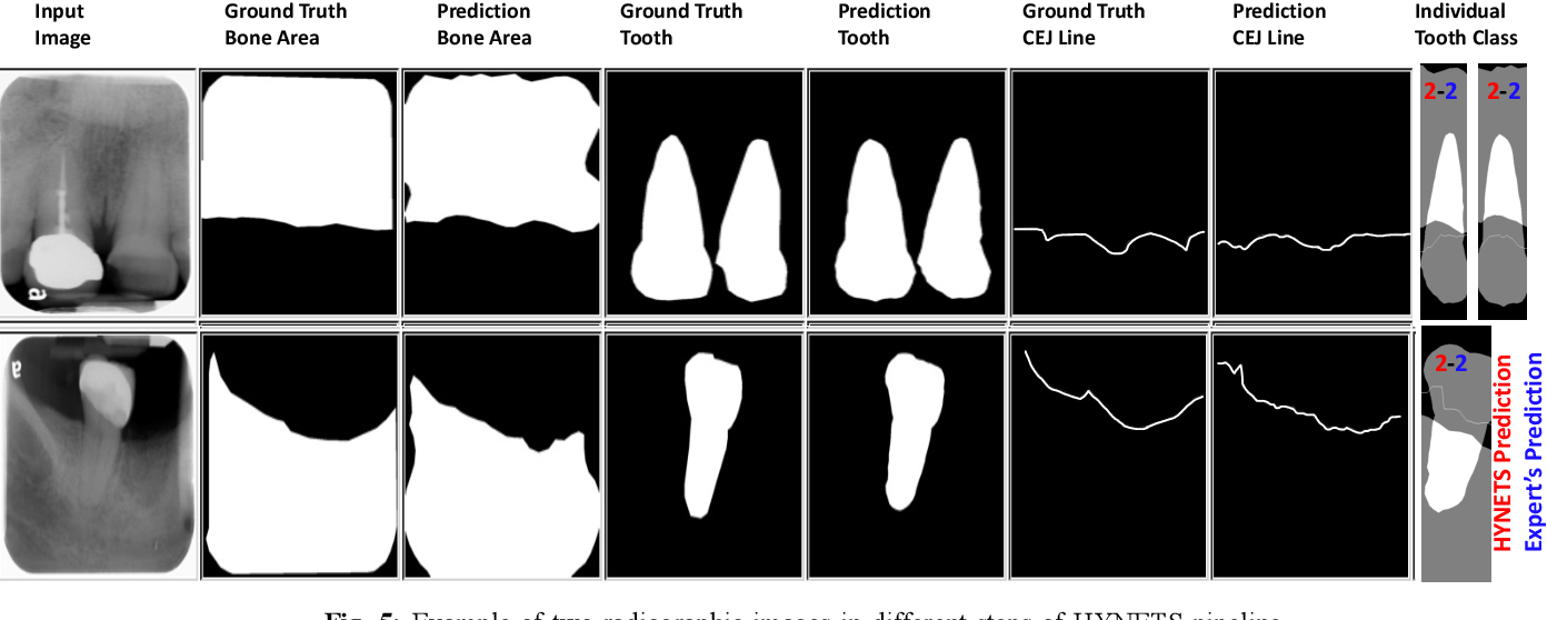 Figure 4 for An End-to-end Entangled Segmentation and Classification Convolutional Neural Network for Periodontitis Stage Grading from Periapical Radiographic Images
