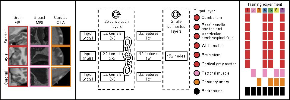 Figure 1 for Deep Learning for Multi-Task Medical Image Segmentation in Multiple Modalities