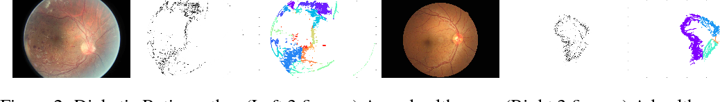 Figure 2 for Modal-set estimation with an application to clustering
