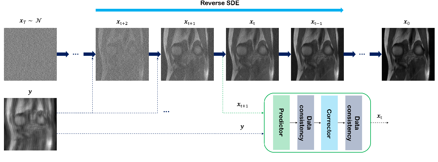 Figure 1 for Score-based diffusion models for accelerated MRI