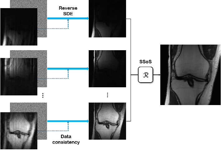 Figure 3 for Score-based diffusion models for accelerated MRI