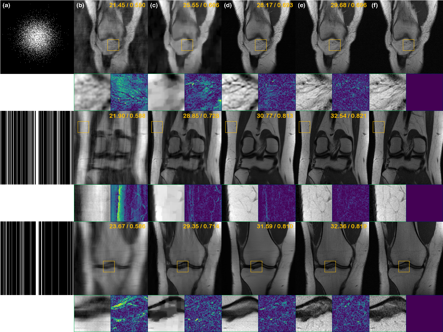 Figure 4 for Score-based diffusion models for accelerated MRI