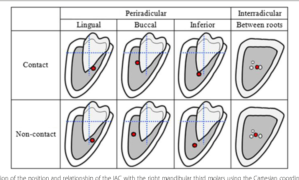 New quantitative classification of the anatomical relationship ...