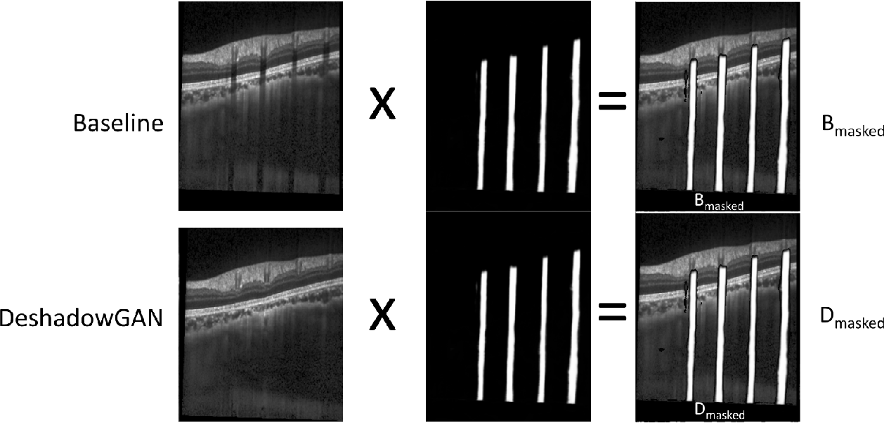Figure 4 for DeshadowGAN: A Deep Learning Approach to Remove Shadows from Optical Coherence Tomography Images