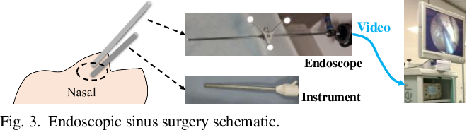 Figure 3 for Towards Better Surgical Instrument Segmentation in Endoscopic Vision: Multi-Angle Feature Aggregation and Contour Supervision
