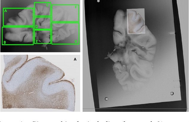 Figure 1 for Part-to-whole Registration of Histology and MRI using Shape Elements
