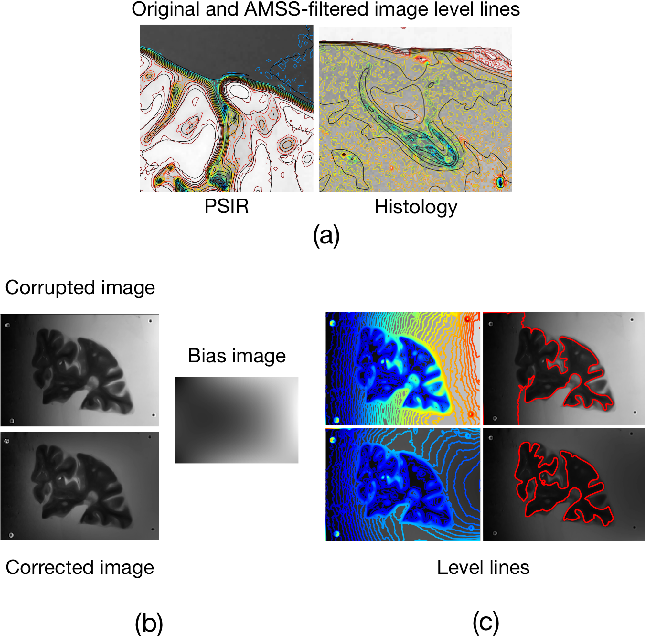 Figure 2 for Part-to-whole Registration of Histology and MRI using Shape Elements