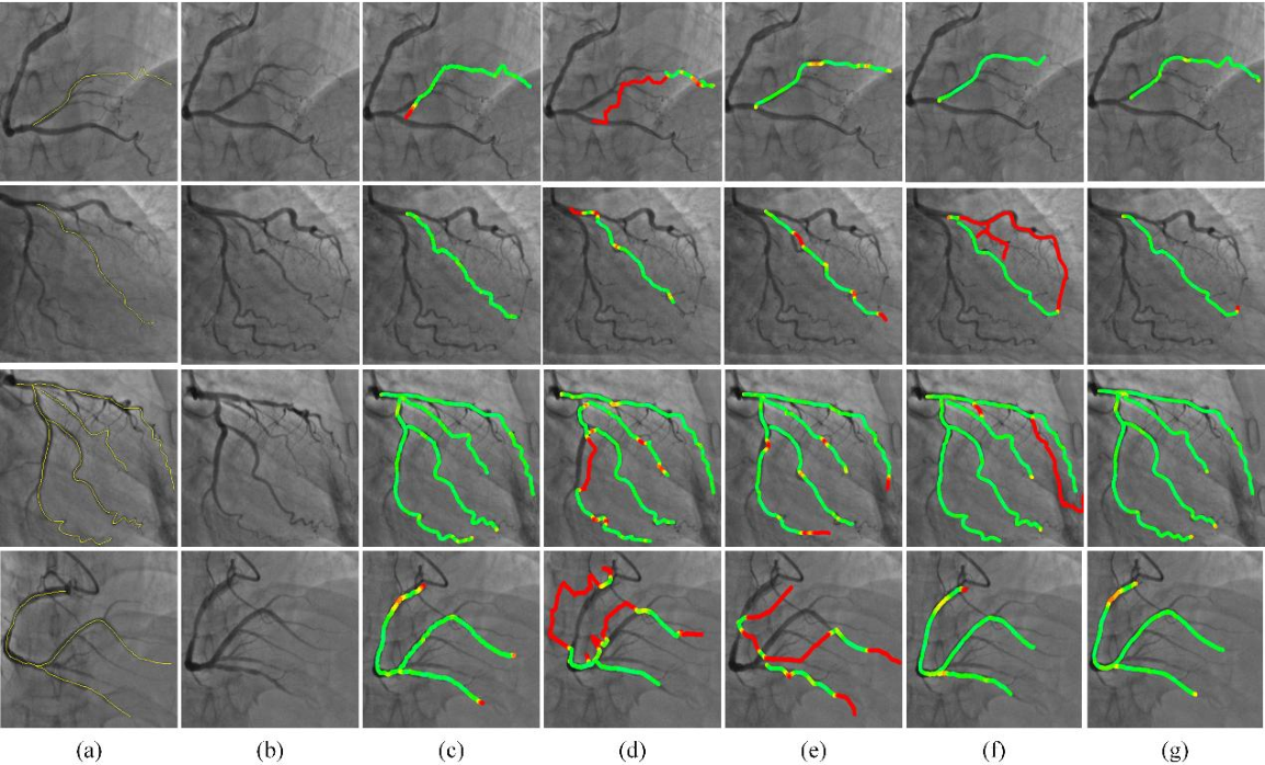 Figure 1 for Greedy Graph Searching for Vascular Tracking in Angiographic Image Sequences