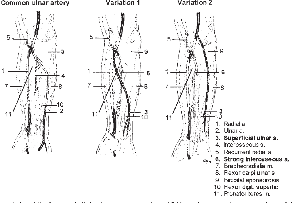 Superficial ulnar artery: curse or blessing in harvesting ...