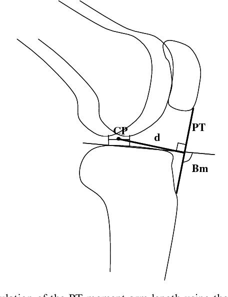 Arm Tendon Diagram