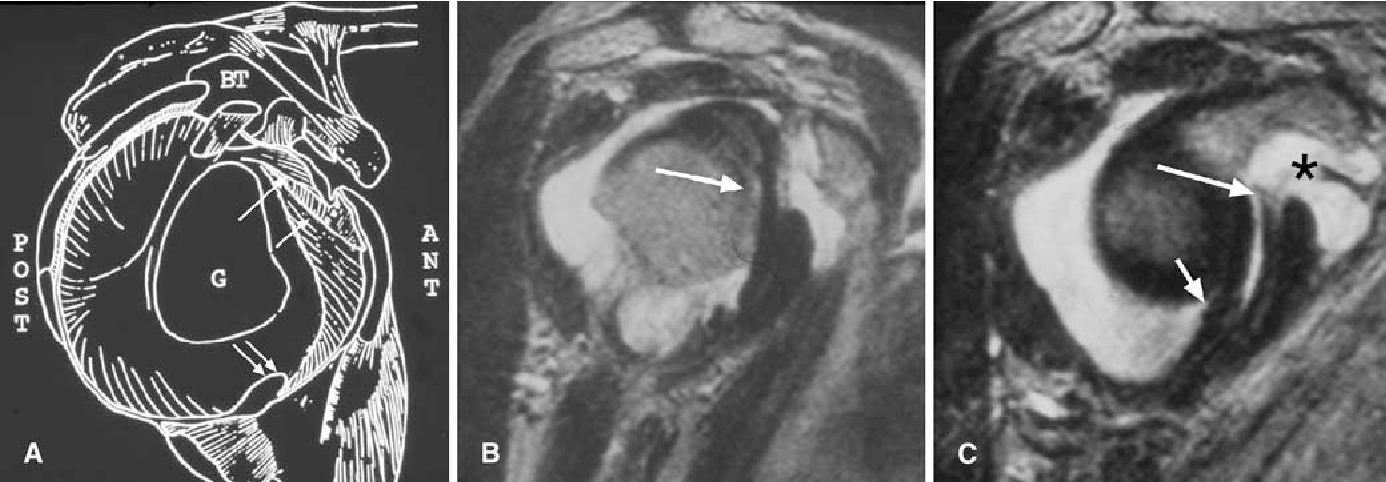 Figure 1 from Non-contrast MR imaging of the glenohumeral joint ...