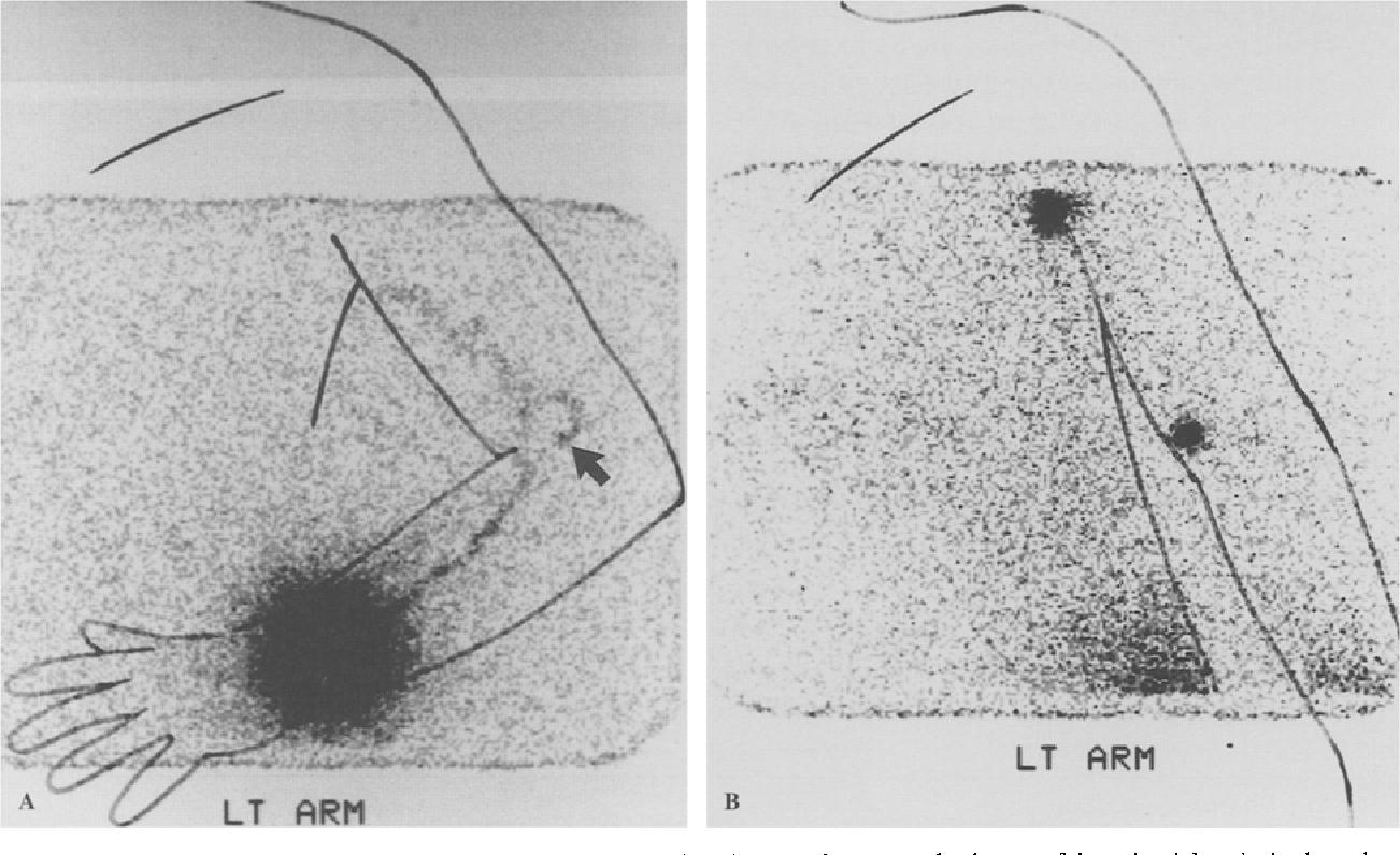 Epitrochlear Lymph Nodes As A Site Of Melanoma Metastasis Semantic