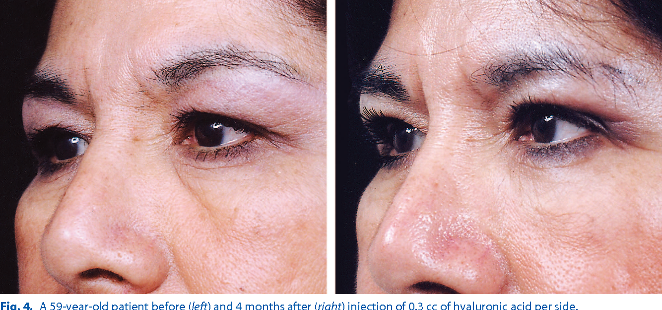 Figure 4 from Hyaluronic acid injections for correction of