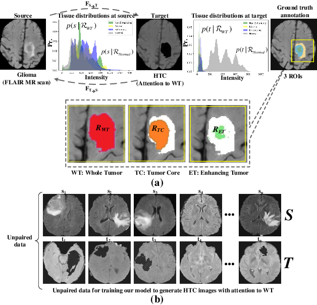 Figure 1 for High Tissue Contrast MRI Synthesis Using Multi-Stage Attention-GAN for Glioma Segmentation
