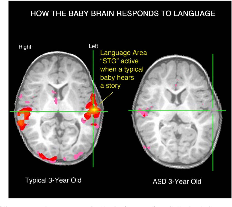 Early functional brain development in autism and the promise of sleep fMRI.  - Semantic Scholar