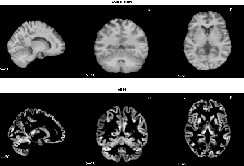 Figure 2 for Benchmarking CNN on 3D Anatomical Brain MRI: Architectures, Data Augmentation and Deep Ensemble Learning