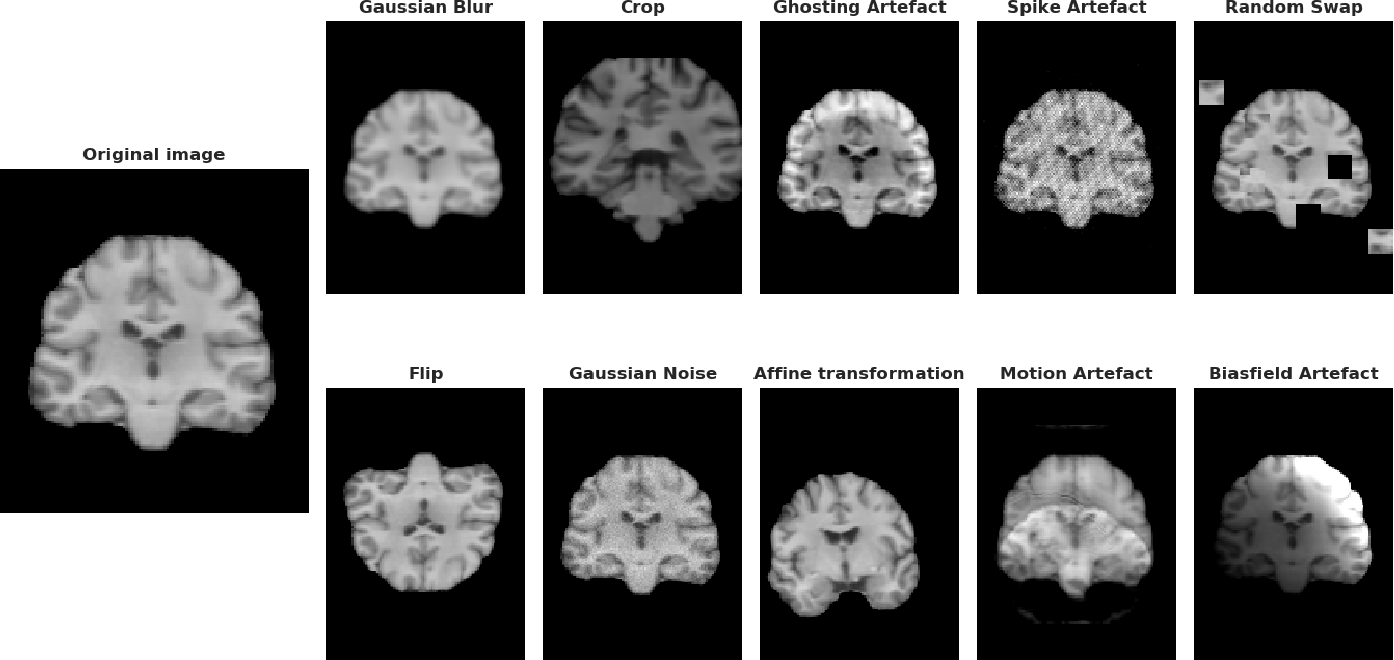 Figure 4 for Benchmarking CNN on 3D Anatomical Brain MRI: Architectures, Data Augmentation and Deep Ensemble Learning