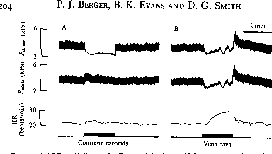 Figure. 5. (A) Effect of inflation of cuffs around the right and left common carotid arteries upon pressure recorded from the ductus caroticus (Pa.cr.) and the aorta (P^ru) nr>d upon heart rate (HR). (B) Effect of posterior vena caval cuff inflation. Note that each ductus carotiois was tied near the lateral aorta.