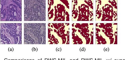 Figure 2 for Constrained Deep Weak Supervision for Histopathology Image Segmentation