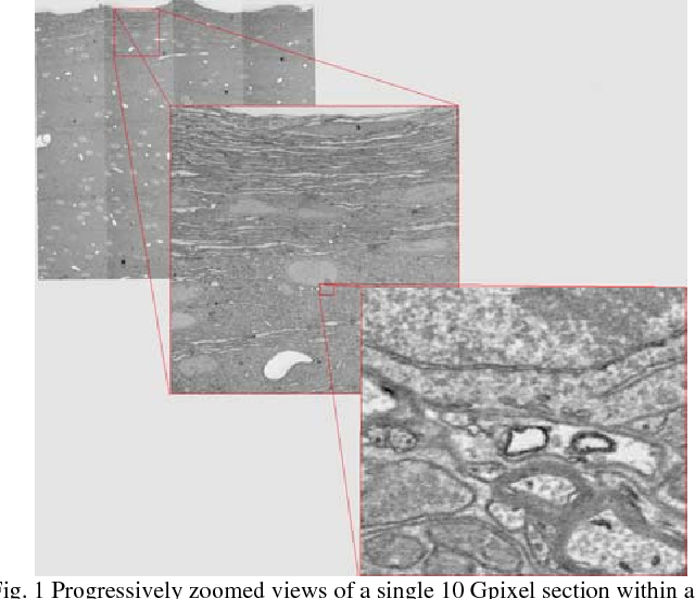 Figure 1 for Registering large volume serial-section electron microscopy image sets for neural circuit reconstruction using FFT signal whitening