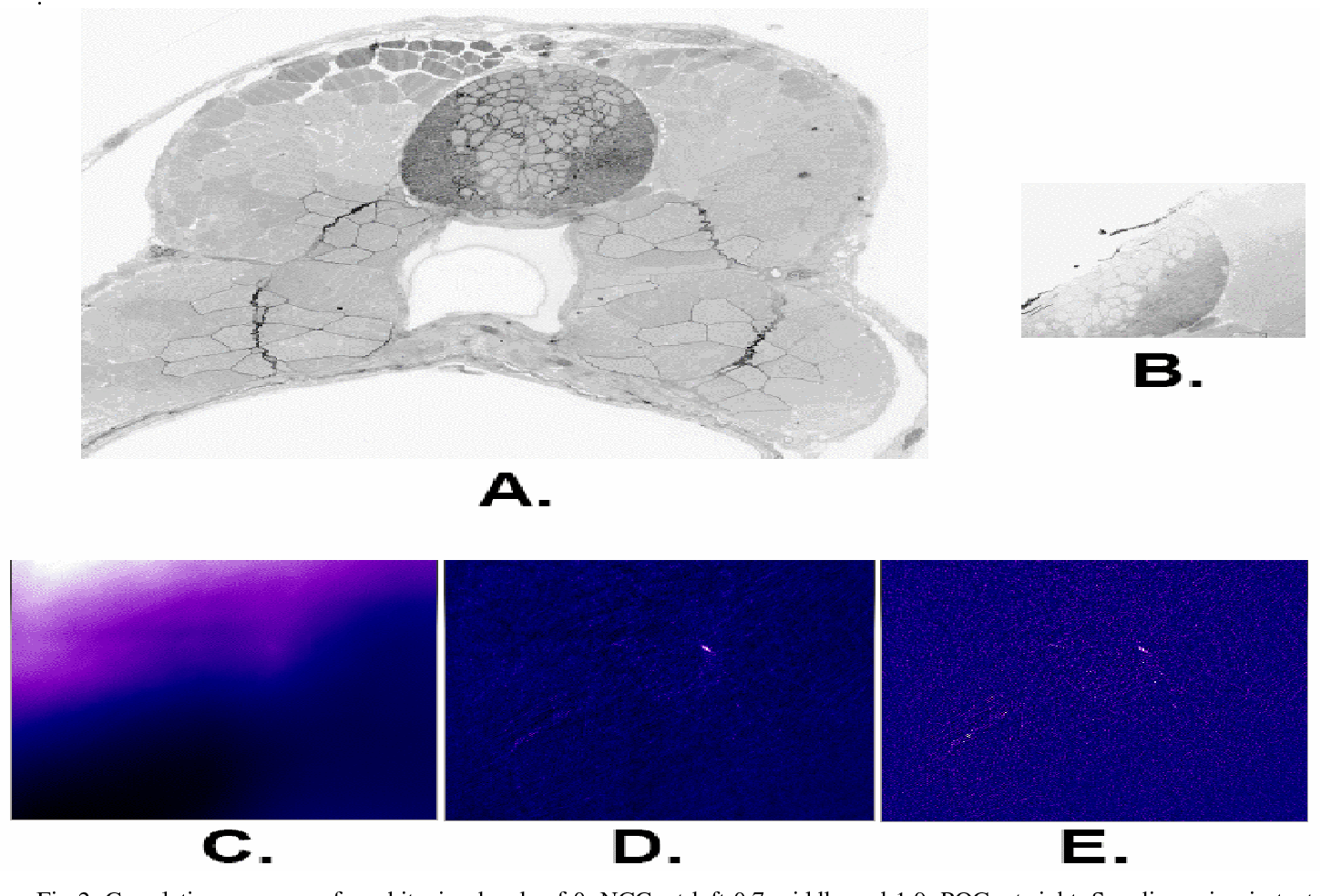 Figure 2 for Registering large volume serial-section electron microscopy image sets for neural circuit reconstruction using FFT signal whitening