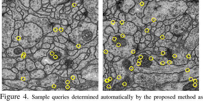Figure 4 for What Properties are Desirable from an Electron Microscopy Segmentation Algorithm