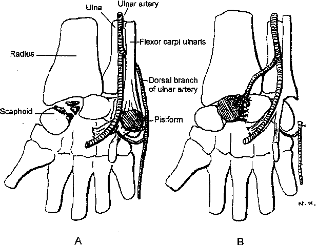 Figure 1 From Vascularised Pisiform Bone Graft Indications