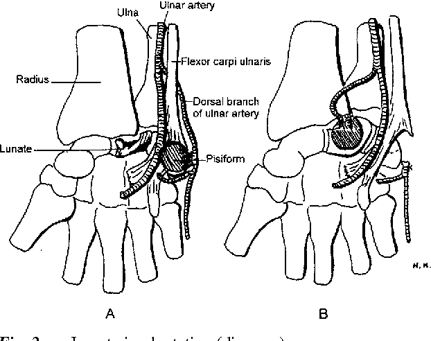 Figure 2 From Vascularised Pisiform Bone Graft Indications