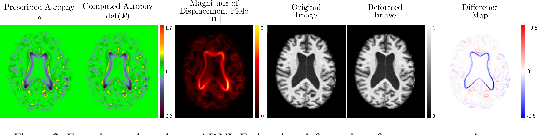 Figure 3 for Biomechanical modelling of brain atrophy through deep learning