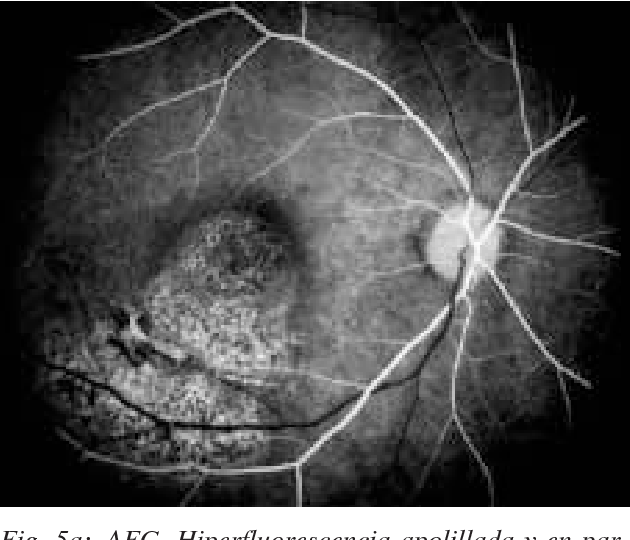 Dual Cause Of Blindness Chorioretinitis Sclopetaria And Homonymous