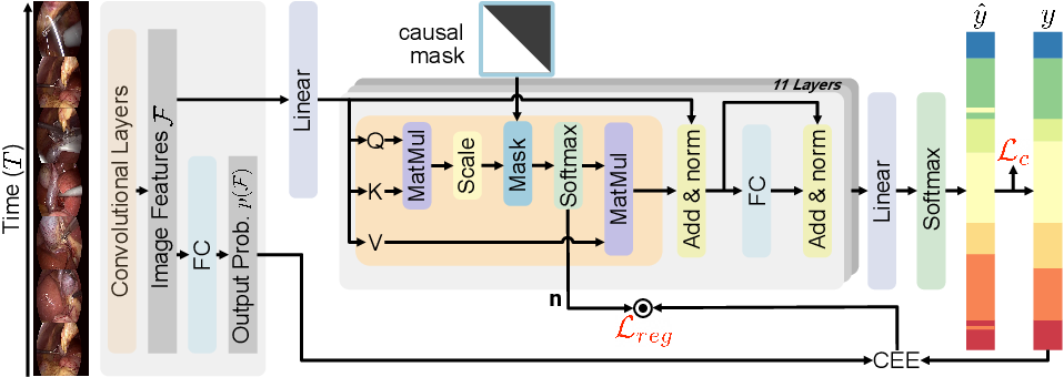 Figure 1 for OperA: Attention-Regularized Transformers for Surgical Phase Recognition
