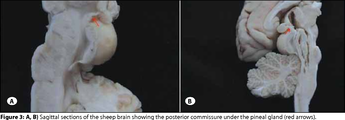 The Anatomy Of The Posterior Commissure Posterior Komissrn