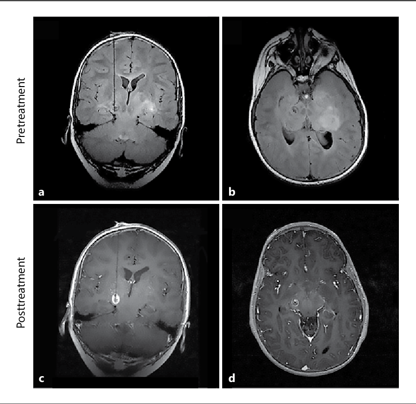 Cerebral peduncle tumor ablated by novel 3-mm laser tip. - Semantic ...
