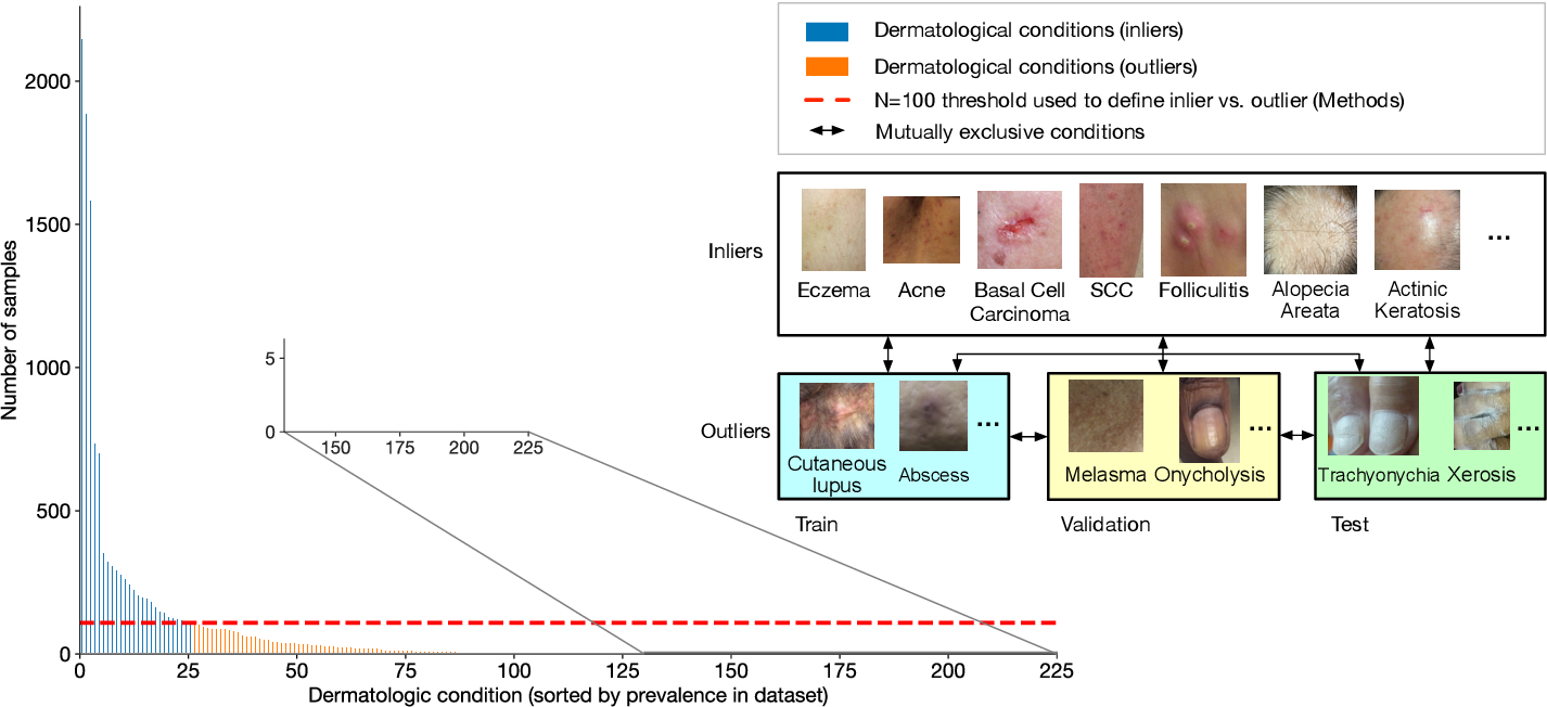 Figure 1 for Does Your Dermatology Classifier Know What It Doesn't Know? Detecting the Long-Tail of Unseen Conditions