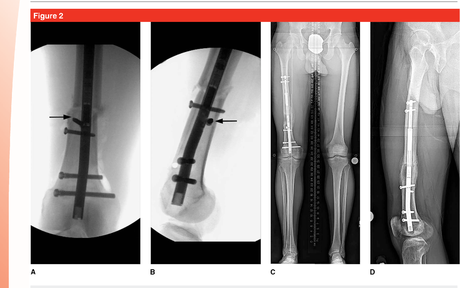 Motorized intramedullary nail for management of limb-length ...