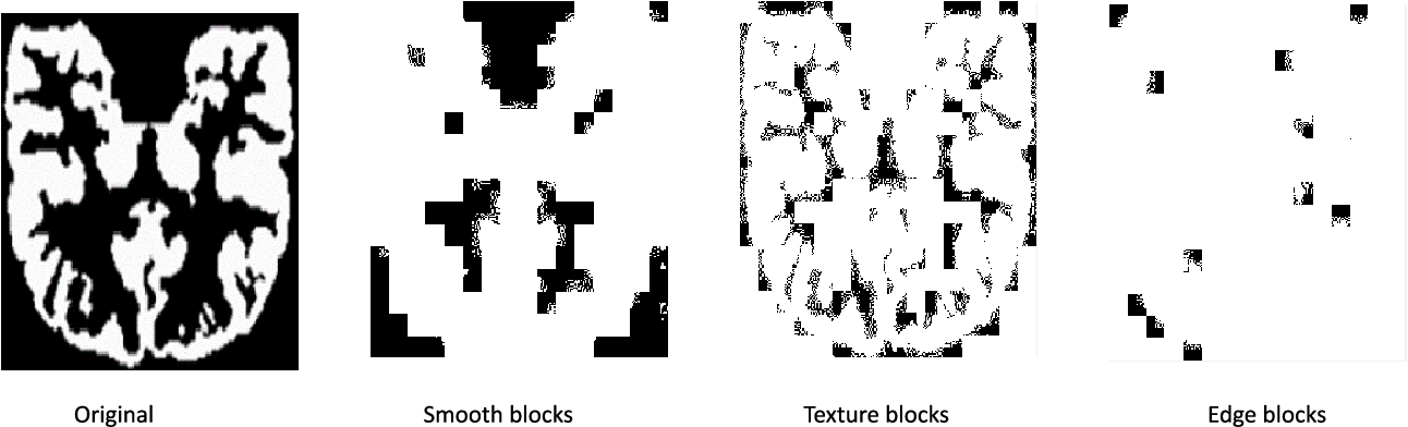 Figure 3 for Super-Resolution of Brain MRI Images using Overcomplete Dictionaries and Nonlocal Similarity