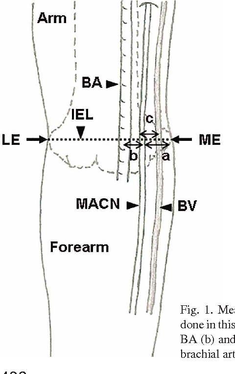 Medial Antebrachial Cutaneous Nerve : Anatomical Relationship with ...