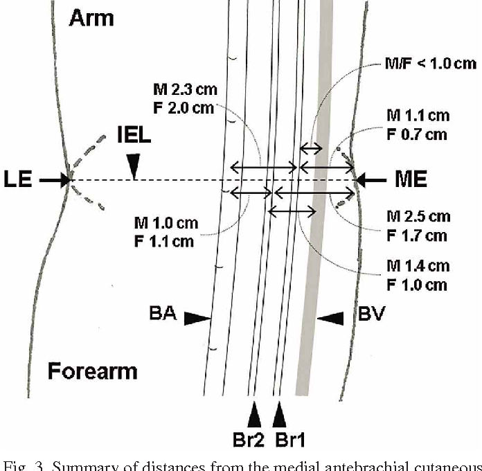 Medial Antebrachial Cutaneous Nerve Anatomical Relationship With