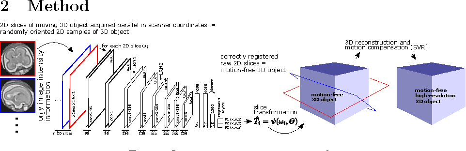 Figure 1 for Predicting Slice-to-Volume Transformation in Presence of Arbitrary Subject Motion