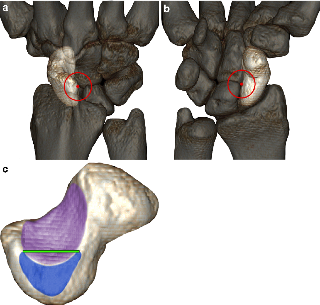 Intraosseous rotation of the scaphoid: assessment by using a 3D CT ...