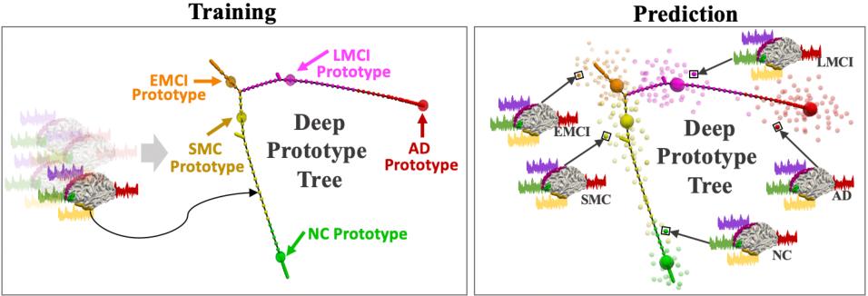 Figure 1 for Representing Alzheimer's Disease Progression via Deep Prototype Tree