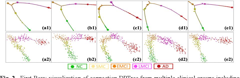Figure 4 for Representing Alzheimer's Disease Progression via Deep Prototype Tree